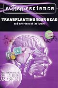 Extreme Science Transplanting Your Head
