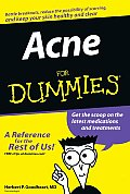 Acne for Dummies (For Dummies) Cover