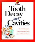 Tooth Decay & Cavities