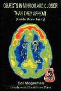 Objects in Mirror Are Closer Than They Appear: Inside Brain Injury