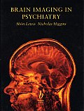 Brain Imaging in Psychiatry