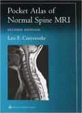 Pocket Atlas of Spinal MRI