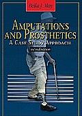 Amputations & Prosthetics A Case Study Approach