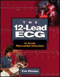 The 12-Lead ECG in Acute Myocardial Infarction