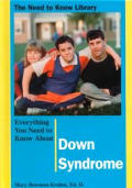Everything You Need to Know about Down Syndrome
