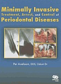 Minimally Invasive Treatment, Arrest and Control of Periodontal Diseases