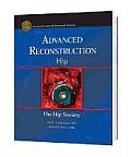 Advanced Reconstruction - Hip