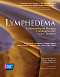 Lymphedema Understanding & Managing Lymphedema After Cancer Treatment