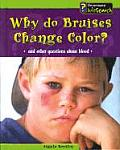 Why Do Bruises Change Color?: And Other Questions about Blood (Body Matters) Cover