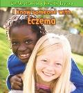 I Know Someone With Eczema