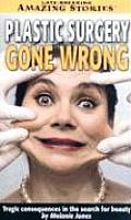 Plastic Surgery Gone Wrong: Tragic Consequences in the Search for Beauty (Late Breaking Amazing Stories) Cover