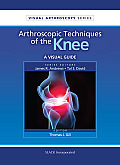 Arthroscpic Techniques of the Knee: A Visual Guide