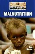 Malnutrition FC (Diseases and Disorders)
