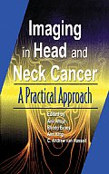 Imaging of Head and Neck Cancer: A Practical Approach
