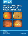 Atlas of Optical Coherence Tomography of Macular Diseases