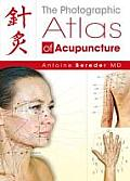 The Photographic Atlas of Acupuncture Cover