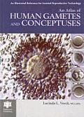 An Atlas of Human Gametes and Conceptuses (Bar International Series)
