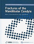 Fractures of the Mandibular Condyle: Basic Considerations and Treatment