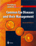 Common Eye Diseases & Their Management