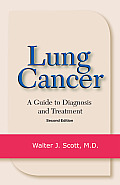 Lung Cancer: A Guide to Diagnosis and Treatment