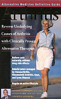 Arthritis: An Alternative Medicine Definitive Guide
