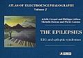 Atlas of Electroencephalographythe Epilepsies - Eeg and Epileptic Syndromes Volume 2