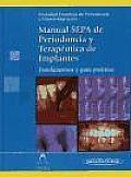 Manual SEPA de periodoncia y terapéutica de implantes / SEPA Manual of periodontics and implant therapy