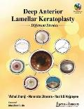 Deep Anterior Lamellar Keratoplasty Different Strokes