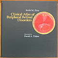 Clinical Atlas of Peripheral Retinal Disorders