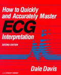 How to quickly and accurately master ECG interpretation