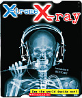 X treme X ray See The World Inside Out