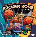 Your Amazing Body Heals a Broken Bone