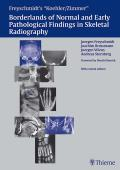 Freyschmidt's koehler/Zimmer Borderlands of Normal and Early Pathological Findings in Skeletal Radiography