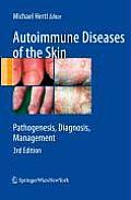 Autoimmune Diseases of the Skin: Pathogenesis, Diagnosis, Management