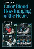 Color Blood Flow Imaging of the Heart