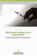 Inektsiya Servisnogo Myshleniya