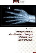 Compression Et Visualisation D Images M?dicales Par Segmentation